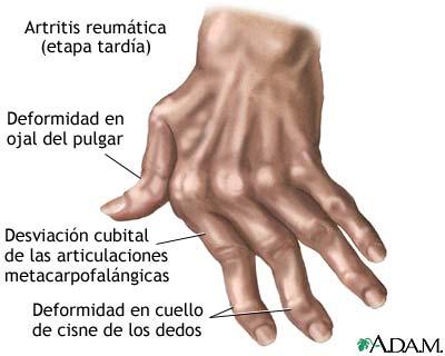 pete de durere articulară bursita umar drept