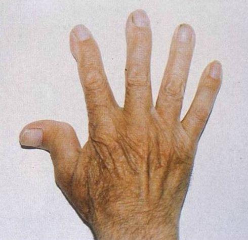 Artritis Reumatoide: tipos de deformaciones en los dedos.
