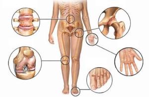 ozonoterapia-tratamiento-artrosis