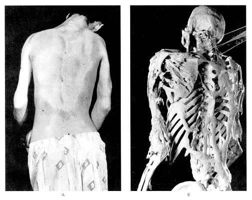 Los dolores de la curvatura de la columna vertebral