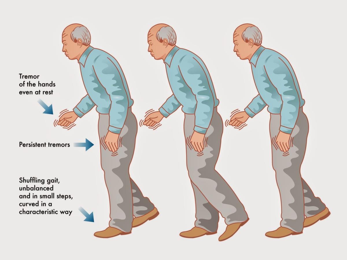 La marcha en la Enfermedad de Parkinson.