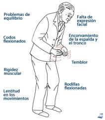 sintomas_signos_parkinson