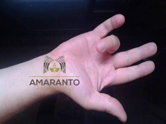 Dedo en resorte Amaranto Terapia Ocupacional