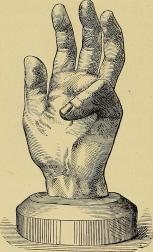 On_contractions_of_the_fingers_(Dupuytren's_and_congenital_contractions)_and_on__hammer-toe__(1892)_(14783186572).jpg
